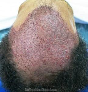 saç ekim ücretleri
