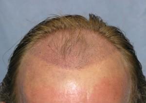 saç ekimi ücretleri